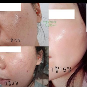 Incellderm customer review and photo 014