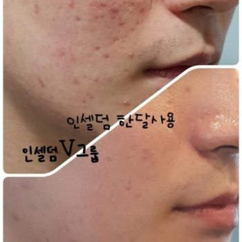 Incellderm customer review and photo 001