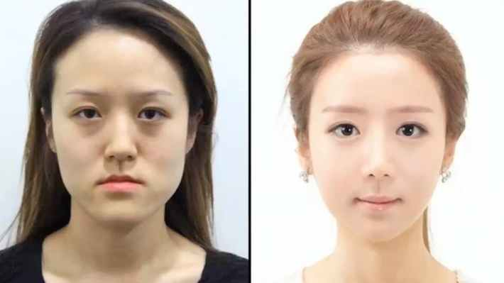 south korea plastic surgery before and after | celebrity plastic surgery