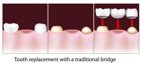 bridge replacing tooth