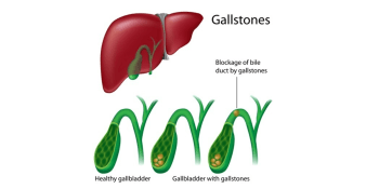 Cholecystectomy – Gallbladder Removal Surgery