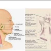 LIMFADENOPATIA: poważna niekorzystna reakcja na iniekcje Covid zapowiada pandemię zabójców w zwolnionym tempie