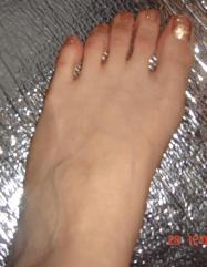 Foot basic image