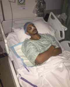 common injury 4 - Mizo Amin Broken Nose surgery