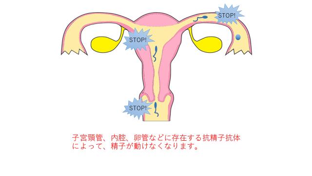 不妊の原因