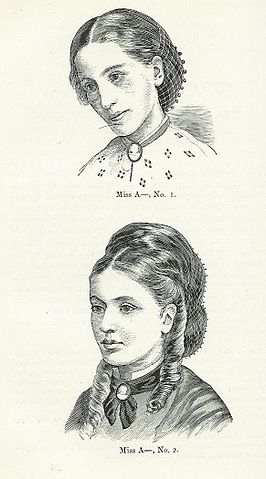 Miss A, in 1866 aged 17 (No. 1) and in 1870 aged 21 (No. 2). From the published medical papers of  Sir William Gull  who first recognized Anorexia in 1873.