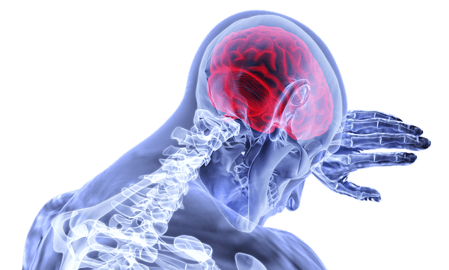 Traumatic Brain Injury Beaumont car accident lawyer