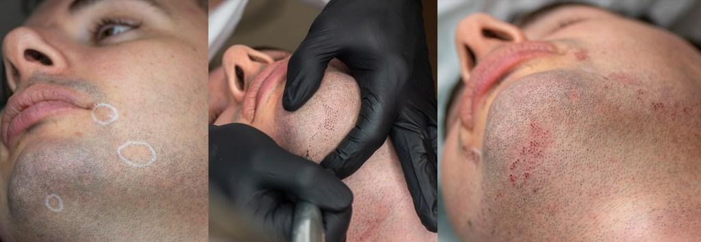 1 foto : zarost z brakami punktowymi owłosienia 2 foto : broda podczas zabiegu 3 foto : broda z kamuflażem zarostu bezpośrednio po zabiegu