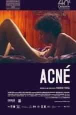 Acne (2008) WEBRip 480p | 720p | 1080p Movie Download