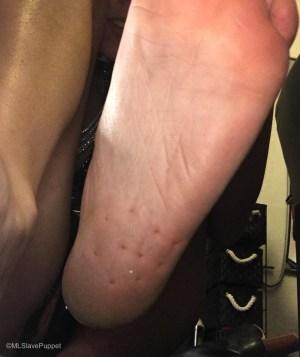 Pin marks