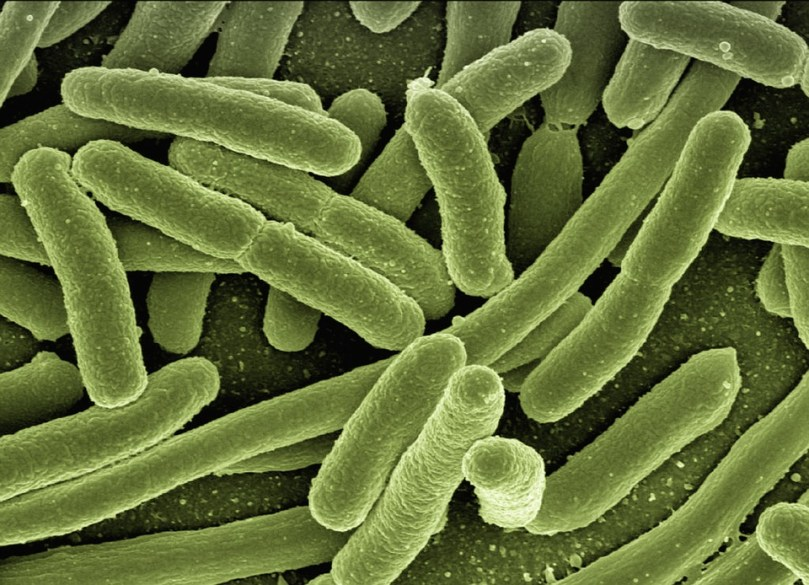 Microbiome: is the answer in our guts?