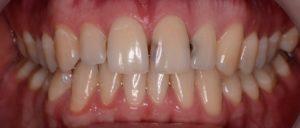 Кариес на передних зубах: фото и лечение