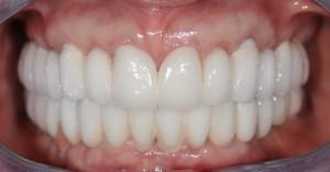 Виниры на передние зубы — фото изделий на кривой ...
