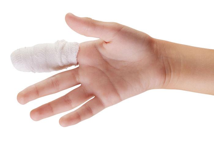 Рассказываем что делать если опух сустав на пальце руки