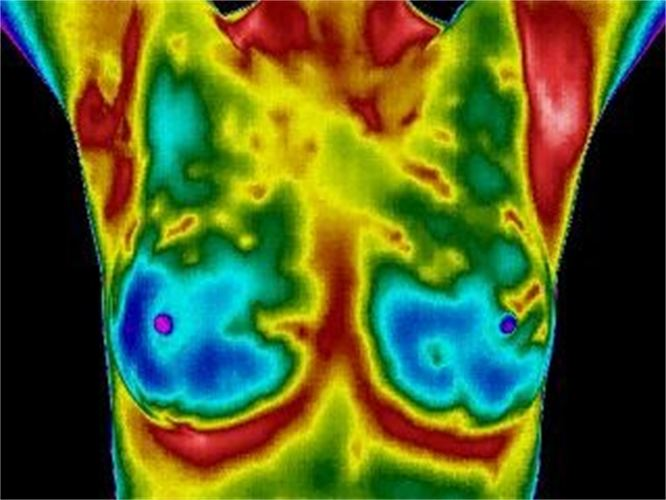 Breast Thermography in Moab, Utah with Dr  Ray Andrew