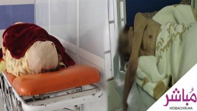 بالفيديو..هل تحول مستشفى محمد الخامس الى مركز الرعاية الإجتماعية؟ 4