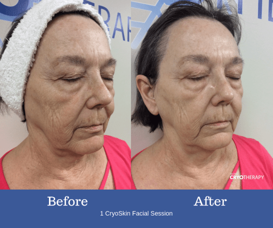 Best Cryotherapy For Face Before And After - Bella Esa