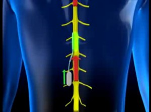 smart-chip-implant-combat-300x222 Miniature smart chip developed to fight chronic pain