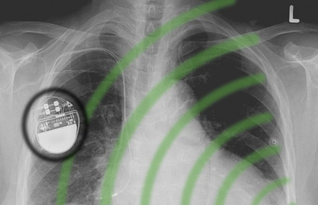 implants-wireless-attacks-640x413 MIT shield could protect pacemaker patients from wireless assassinations