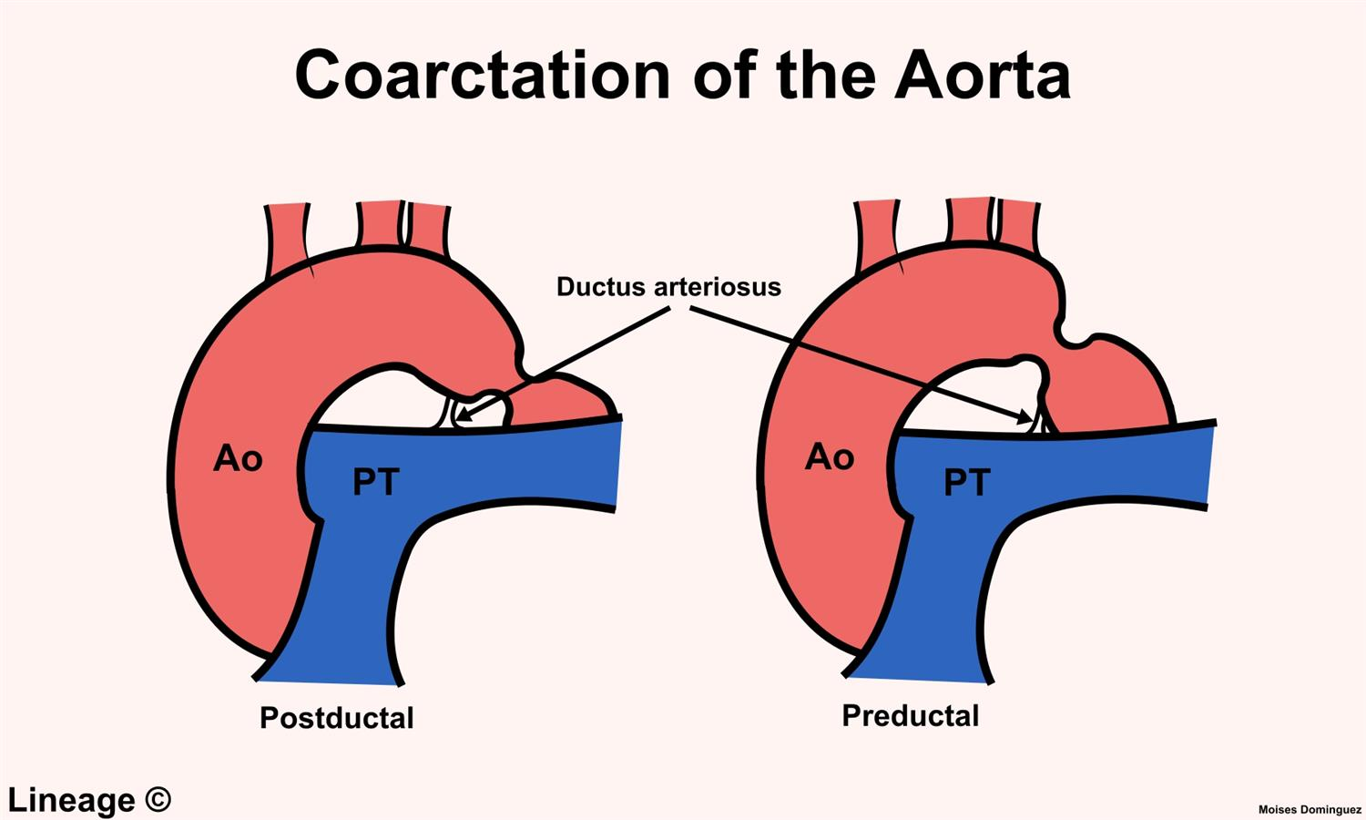 coarctation of the aorta11