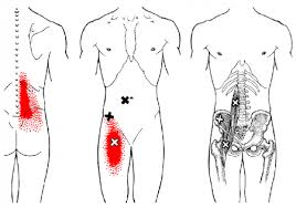 Back-Pain-Trigger-Points