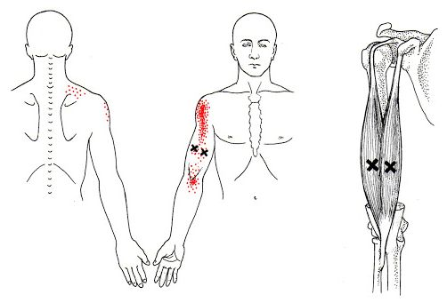 Trigger Points of the Biceps