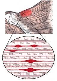 Trigger Points are located between and within the muscle fibers