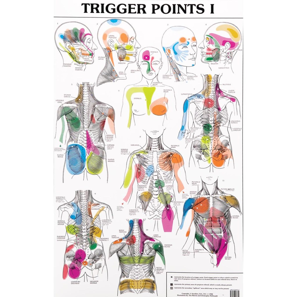 Trigger Points Chart with referral Patterns