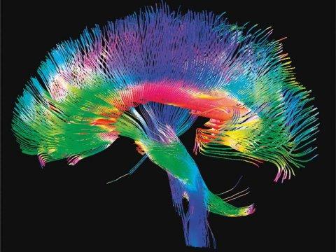Połączenia nerwowe - mózg