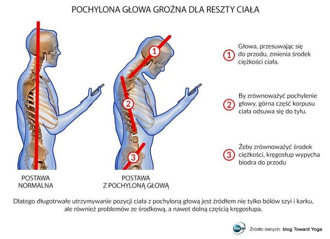 Pochylona głowa podczas korzystania ze smartfona jest groźna dla reszty ciała