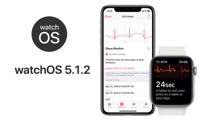 Funkcja EKG w Apple Watch Series 4 z systemem watchOS 5.1.2