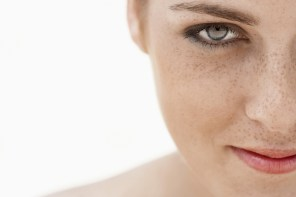 How to remove sunspots on face