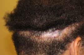 botched strip fut scar