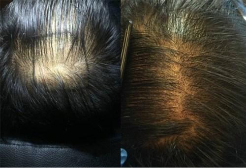 hair density modena hair institute