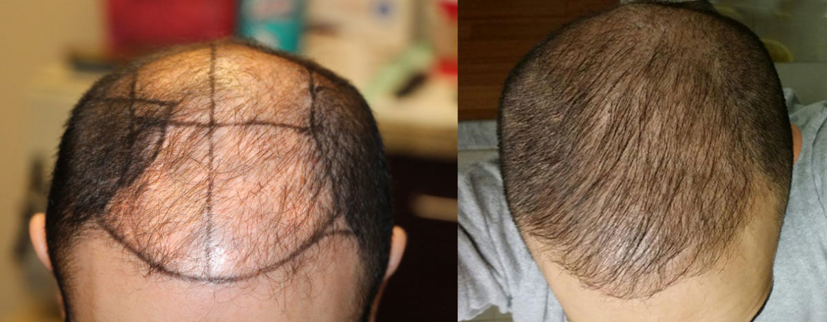 Before and 6 months after 2500 FUE hair grafts.