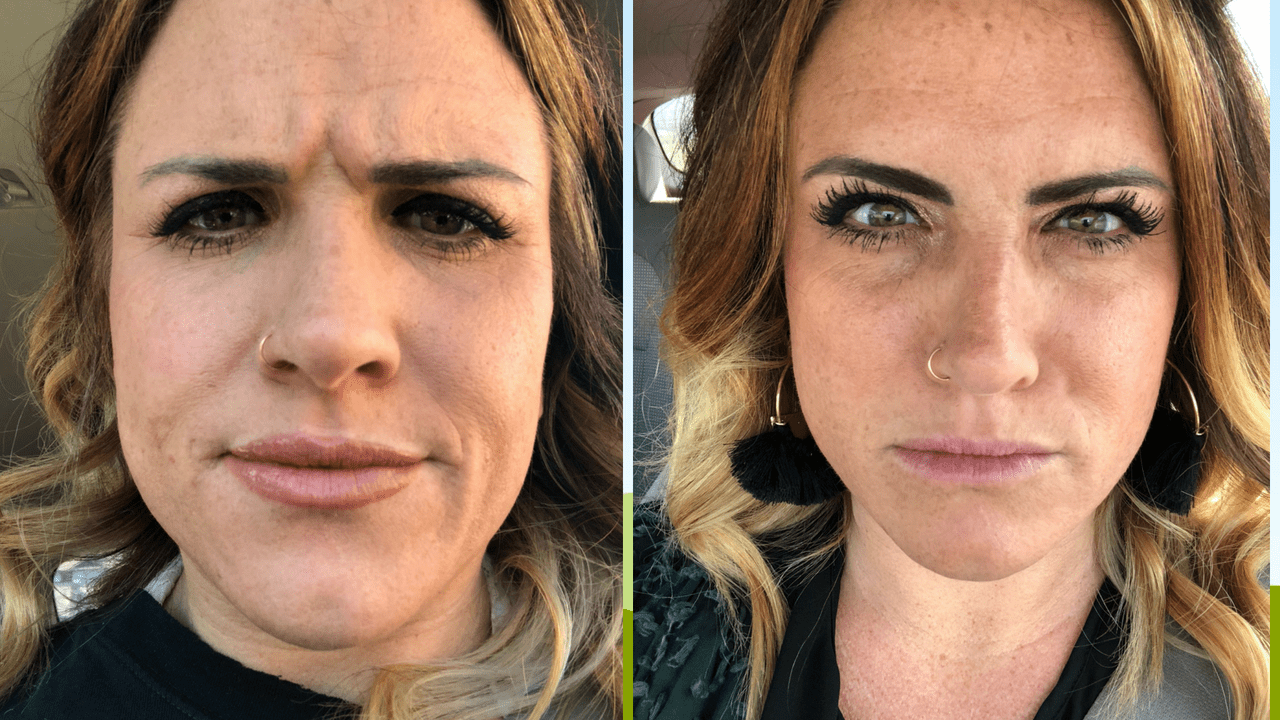 Before and After of My First Botox Experience by popular Tennessee style blogger, Modern Day Moguls