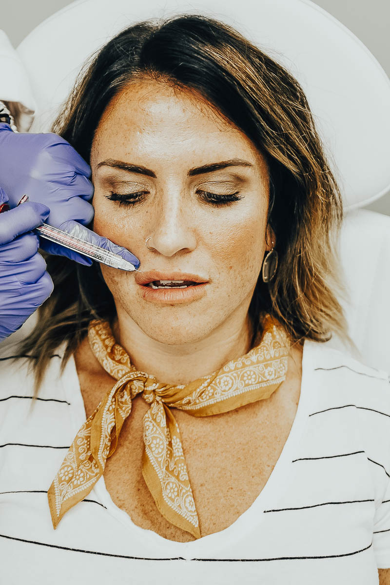 Lip Injections Before & After using JUVÉDERM VOLLURE™ XC featured by top Nashville life and style blog Modern Day Moguls