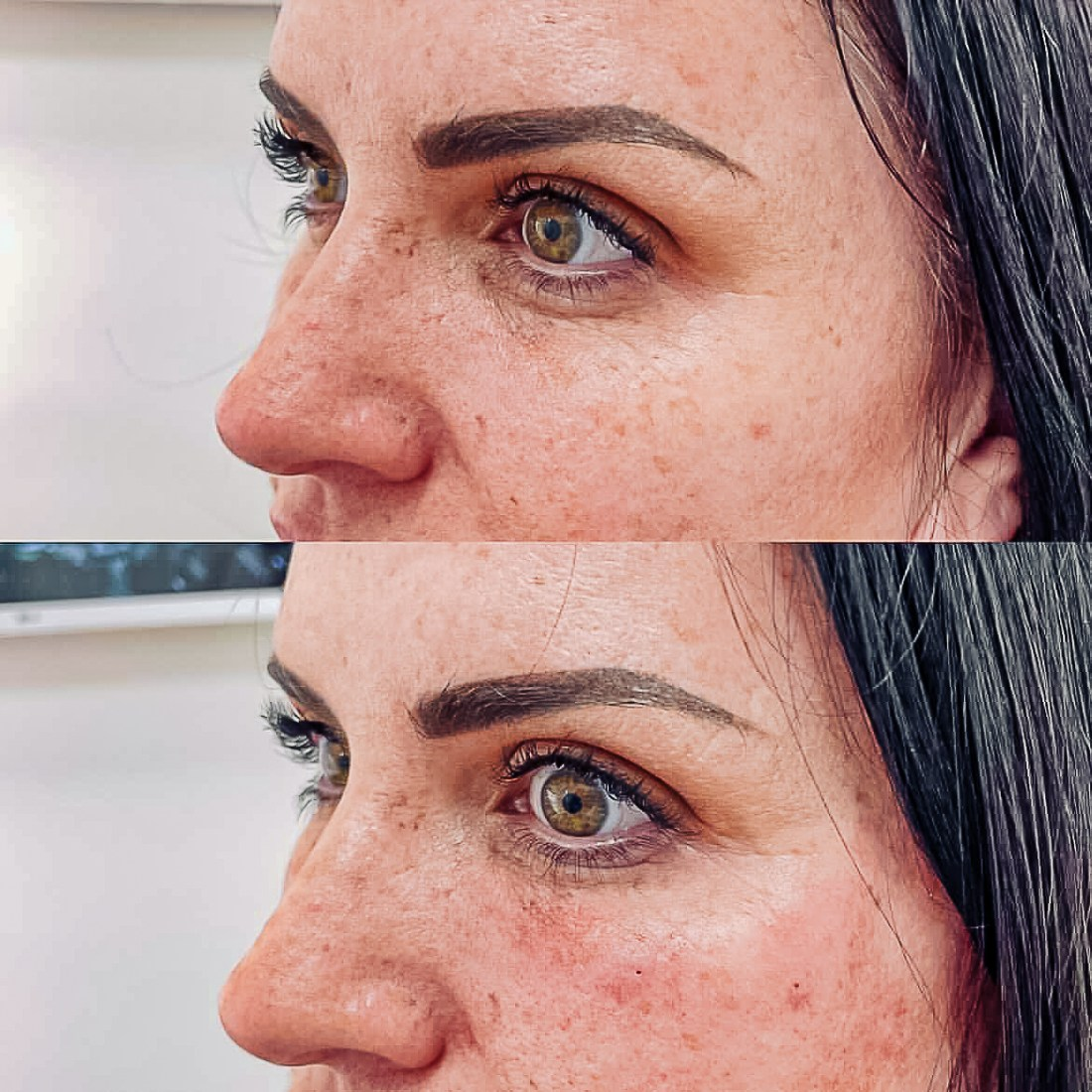 Face Filler by popular Nashville beauty blog, Modern Day Moguls: before and after image of a woman with face filler.