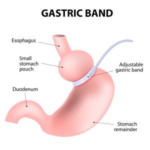 visual-gastric-bypass-surgery-hypnosis-mp3-download