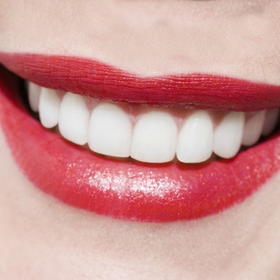 Picture of a woman's smile