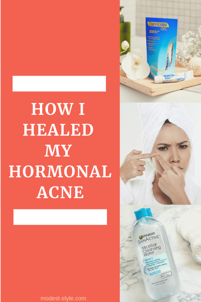 How I healed my hormonal acne (2)