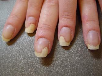 Ноготь отходит от кожи на руке – фото, описание, советы