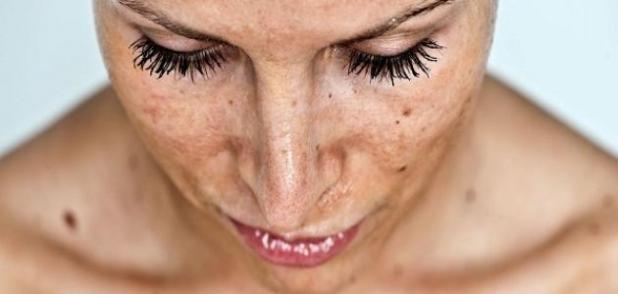 نتيجة بحث الصور عن تفتيح الوجه من الشمس