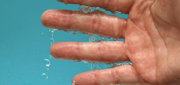 نتيجة بحث الصور عن تعرق اليدين