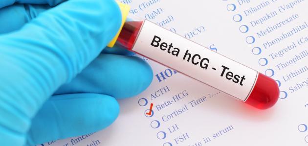 تحليل الدم لكشف الحمل موضوع