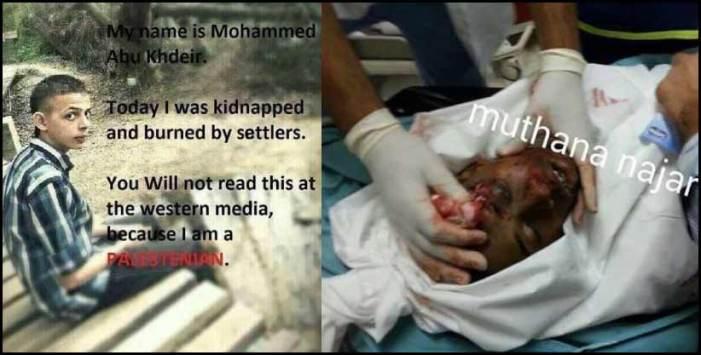 Mohammed-Abu-Khdeir-1