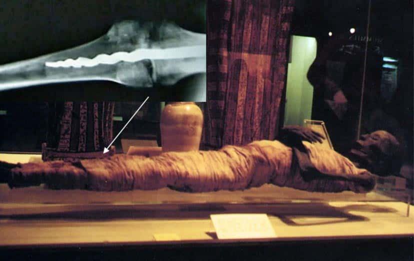 Đinh vít trong xác ướp 2.600 năm tuổi khiến giới khoa học kinh ngạc