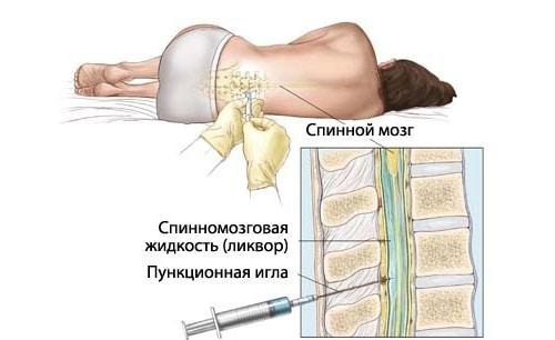Шейная миелопатия лечение. Миелопатия спинного мозга, виды и методы лечения. Как диагностируют болезнь
