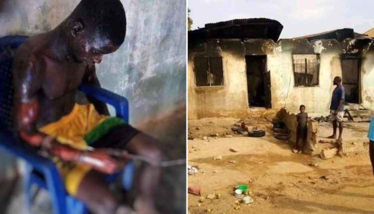 Angry Wife Allegedly Sets Husband Ablaze In Benue
