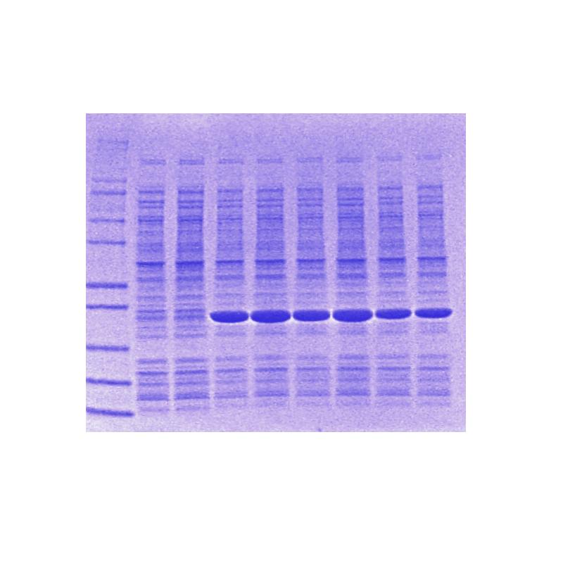 NativeLyserTM Soluble Protein Lysis Buffer